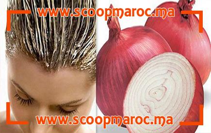 وصفة مذهلة..البصل يجعل شعرك كنجمات هوليوود وهذه تفاصيل طريقة الاستعمال